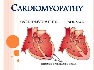 Heart Muscle Disease (Cardiomyopathy)