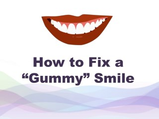 "How to Fix a ""Gummy"" Smile"