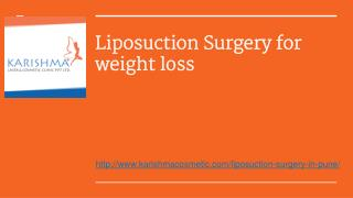 Liposuction Sugery for Weight loss