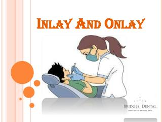 Brandon Dentist : Dental Inlay And Onlay Restoration in Bridges Dental