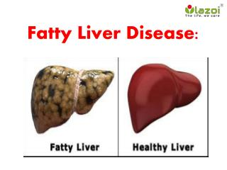 Fatty Liver Disease: Information on symptoms, causes and treatment