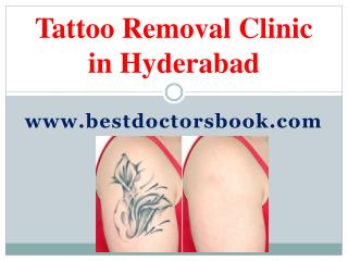 Tattoo Removal Clinic in Hyderabad | Tattoo Removal Hyderabad