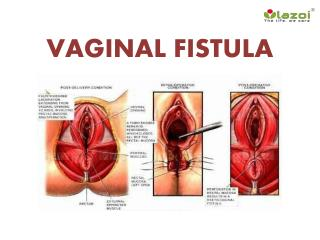 Vaginal Fistula: Causes, Symptoms, Diagnosis, and Treatment