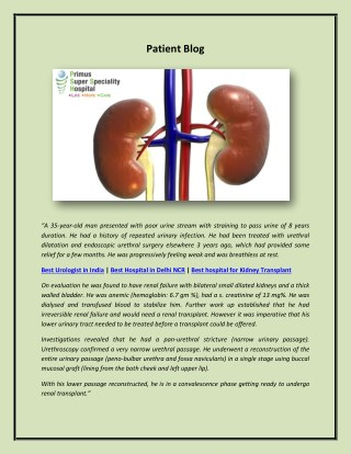 Best hospital for Kidney Transplant