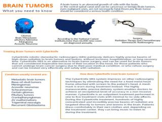 Brain Tumors Treatment with CyberKnife VSI in Delhi, India and Radiation Therapy for Brain Cancer