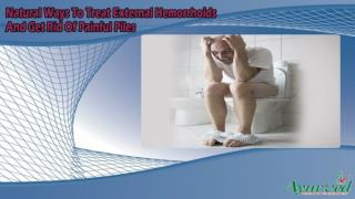 Natural Ways To Treat External Hemorrhoids And Get Rid Of Painful Piles