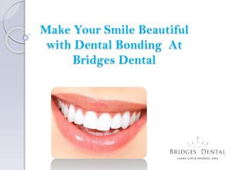 Dentist Lithia: Make Your Smile Look Better  With Dental bonding | Bridges Dental