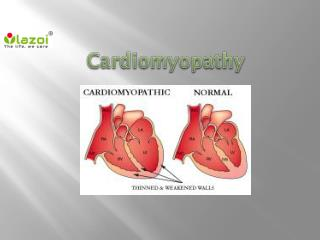 Cardiomyopathy : Causes, Symptoms,Types, Diagnosis and Treatment