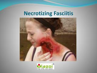 Necrotizing Fasciitis: Symptoms, Causes, Diagnosis and Treatment