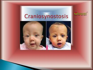 Craniosynostosis: Types, Causes, Symptoms, Diagnosis and Treatment