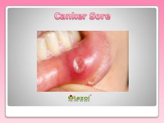 Canker Sore: Causes, Symptoms, Diagnosis and Treatment