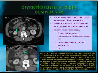 DIVERT CULO DE MECKEL COMPLICADO