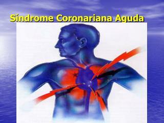 S ndrome Coronariana Aguda