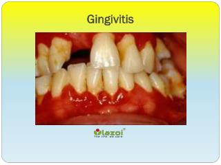 Gingivitis: Symptoms, Causes, Diagnosis and Treatment