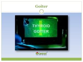 Goiter: Read about symptoms, causes and treatment