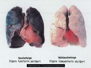 Sigara  nemli Bir Halk Sagligi Problemi