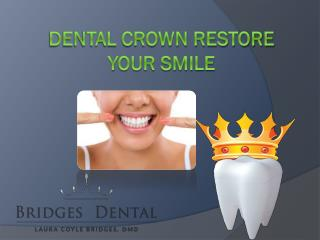 Lithia Dentist: Denal Crown can Restore Your Smile | Bridges Dental