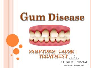 Schedule an Appointment with Brandon Dentist For Gum Treatment
