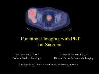 Functional Imaging with PET  for Sarcoma