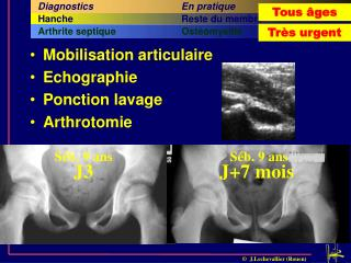 Mobilisation articulaire Echographie Ponction lavage Arthrotomie