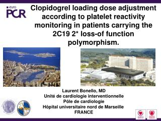 Clopidogrel loading dose adjustment according to platelet reactivity monitoring in patients carrying the 2C19 2 loss-of