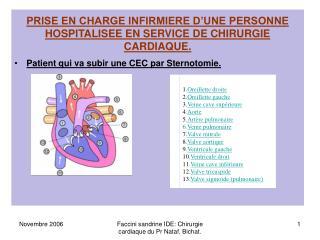 PRISE EN CHARGE INFIRMIERE D UNE PERSONNE HOSPITALISEE EN SERVICE DE CHIRURGIE CARDIAQUE.