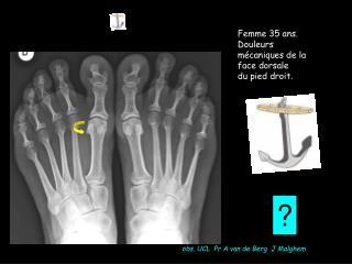 Femme 35 ans. Douleurs m caniques de la face dorsale  du pied droit.