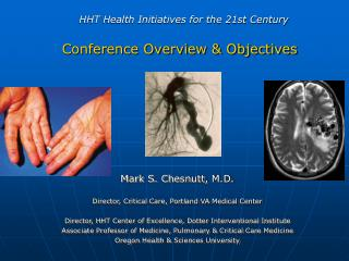 HHT Health Initiatives for the 21st Century