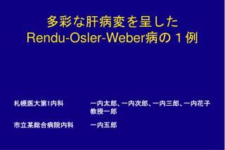 Rendu-Osler-Weber1