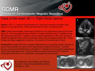 Case of the week 08-11: Right Atrial Lipoma
