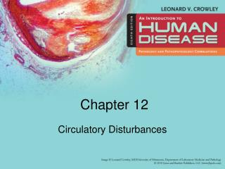 Circulatory Disturbances