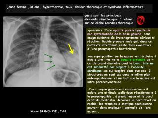 Jeune femme ,18 ans , hyperthermie, toux, douleur thoracique et syndrome inflammatoire.