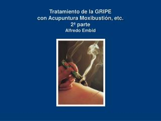 Tratamiento de la GRIPE  con Acupuntura Moxibusti n, etc. 2  parte Alfredo Embid
