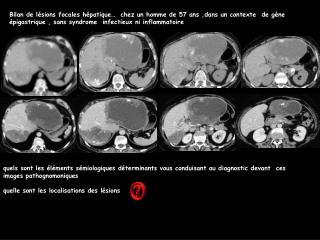 Bilan de l sions focales h patique   chez un homme de 57 ans ,dans un contexte  de g ne  pigastrique , sans syndrome  in