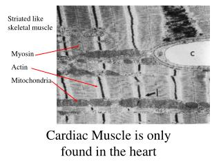 Cardiac Muscle is only found in the heart