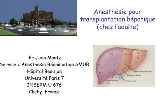 Anesth sie pour transplantation h patique chez l adulte