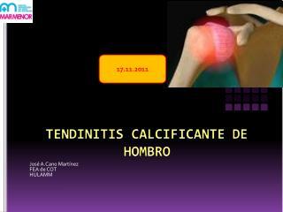 TENDINITIS CALCIFICANTE DE HOMBRO