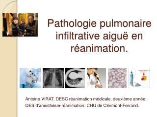 Pathologie pulmonaire infiltrative aigu  en r animation.