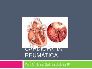 Cardiopat a Reum tica