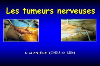 Les tumeurs nerveuses