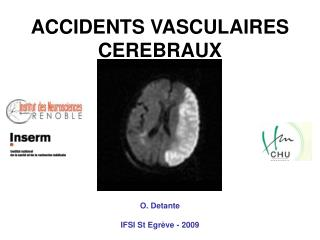 ACCIDENTS VASCULAIRES CEREBRAUX