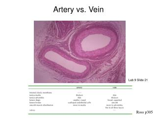 Artery vs. Vein