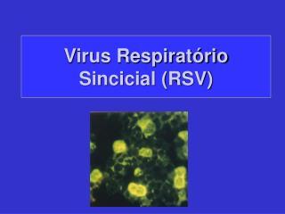 Virus Respirat rio Sincicial RSV