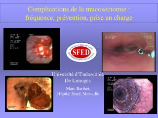 Complications de la mucosectomie : fr quence, pr vention, prise en charge