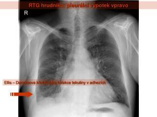 RTG hrudn ku: pleur ln  v potek vpravo