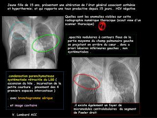 Jeune fille de 15 ans, pr sentant une alt ration de l tat g n ral associant asth nie et hyperthermie; et qui rapporte un