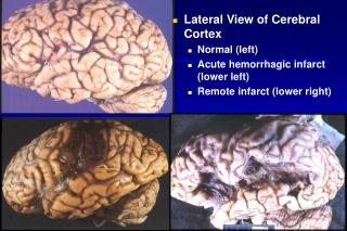 Lateral View of Cerebral Cortex Normal left Acute hemorrhagic infarct lower left Remote infarct lower right