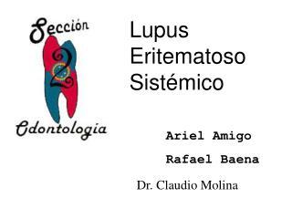 Lupus Eritematoso Sist mico