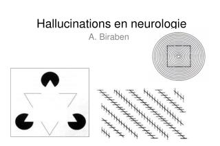 Hallucinations en neurologie