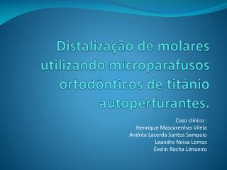 Distaliza  o de molares utilizando microparafusos ortod nticos de tit nio autoperfurantes.